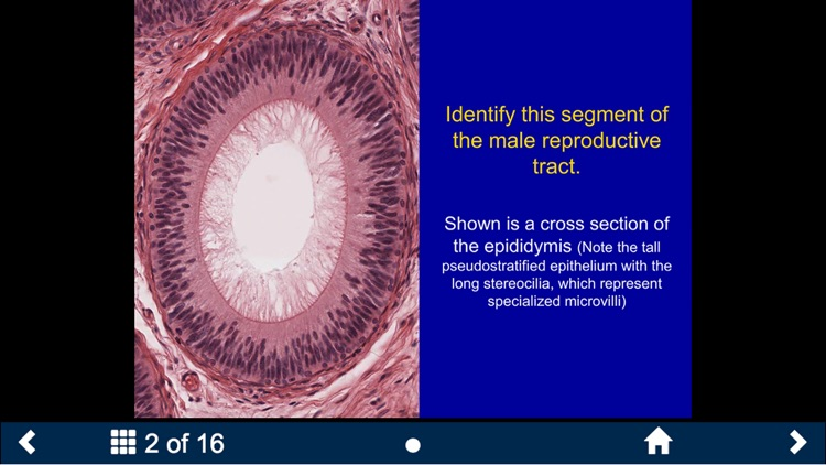 Histology - Urinary-Endocrine-Reproductive Systems screenshot-3