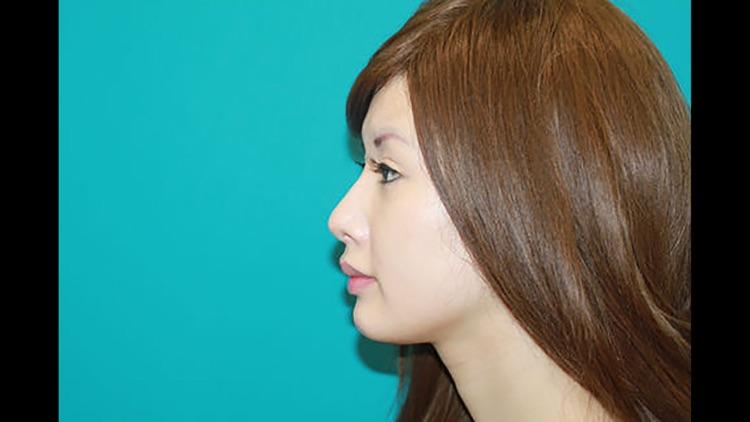 Nasal tip refinement - conchal cartilage grafts screenshot-4