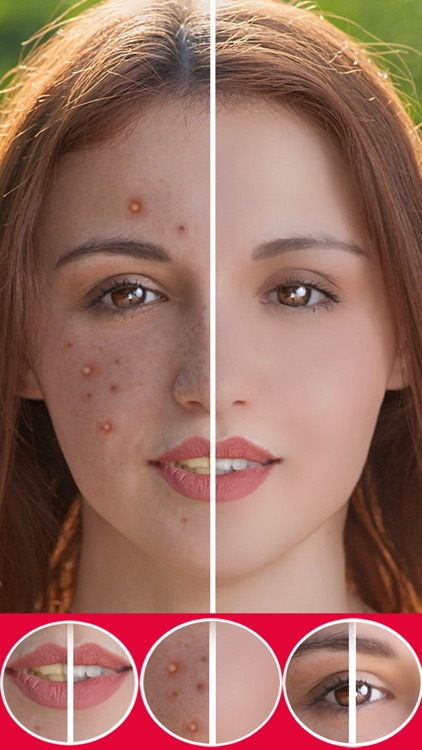 Face beauty - Makeup Camera Retouch,Erase pimples by Suborna