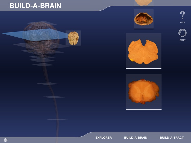 Build-A-Brain Explorer