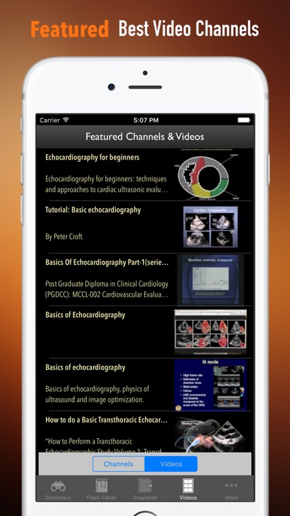 Echocardiography Glossary|Cheatsheet,Study Guide screenshot-2