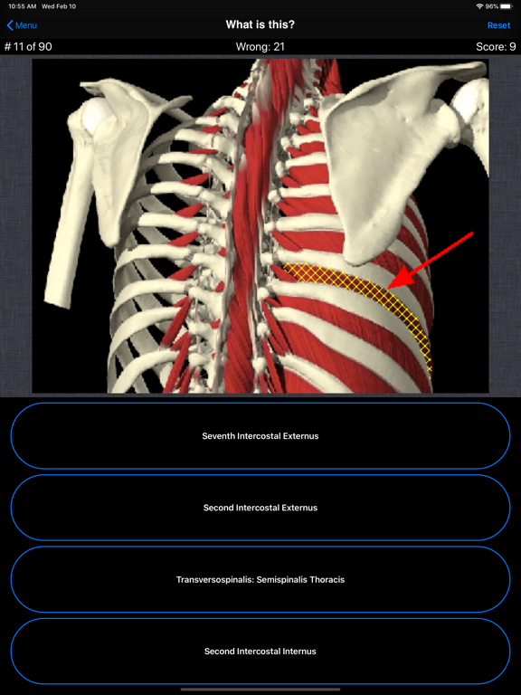 Anatomy Spine Quizのおすすめ画像2