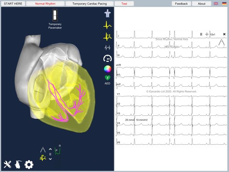 Temporary Cardiac Pacing screenshot-6
