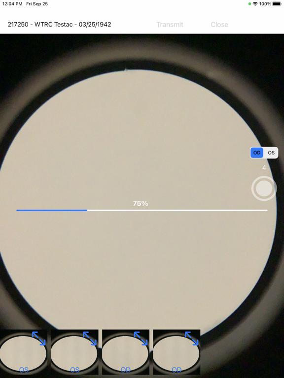 Brane SlitLamp Capture screenshot 7