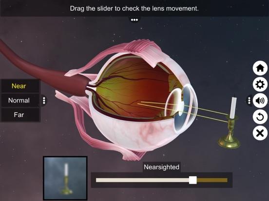 The Eye (Anatomy & Physiology) screenshot 15