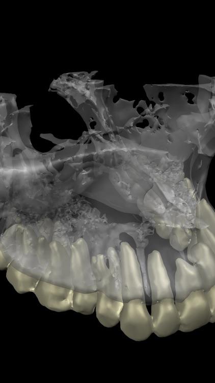 Dental CT View screenshot-7