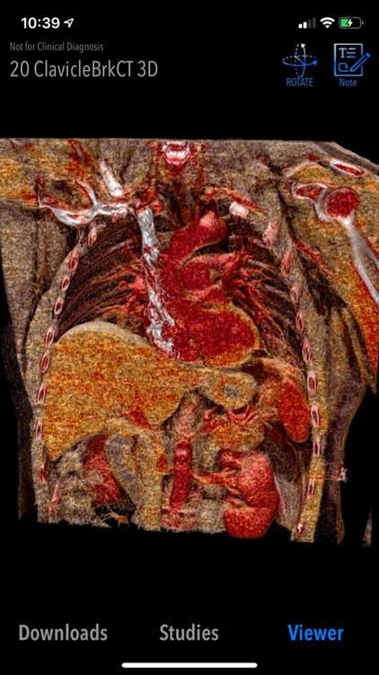 MedVizi™ CT-MRI Viewer screenshot-4