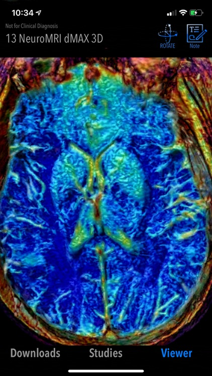 MedVizi™ CT-MRI Viewer