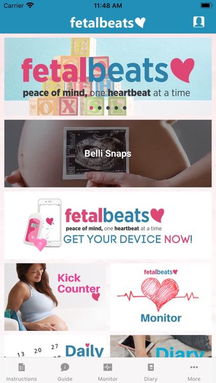 Fetalbeats 2.0