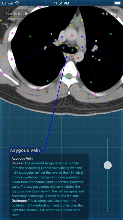 X-Anatomy Pro screenshot-3