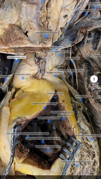 Dissection Master XR screenshot-6