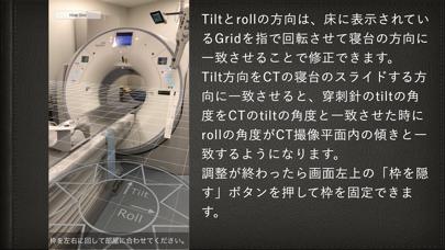 AR穿刺ガイド紹介画像2