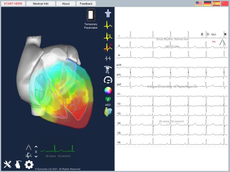 Epicardio Heart Simulator screenshot-3