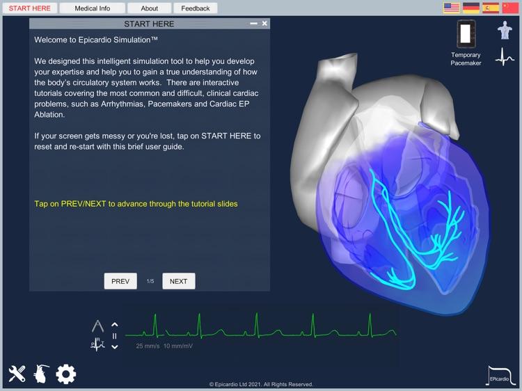 Epicardio Heart Simulator screenshot-4