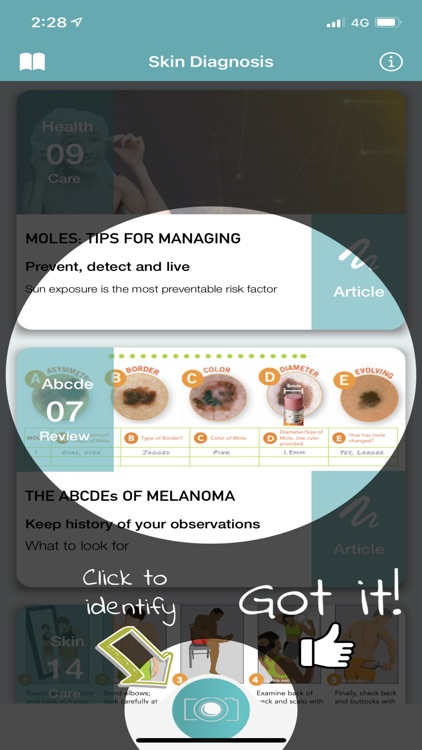 Skin Diagnosis For Your Mole